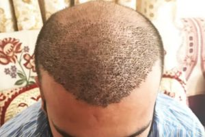 Why To Choose Delhi NCR For Hair Transplant Surgery?