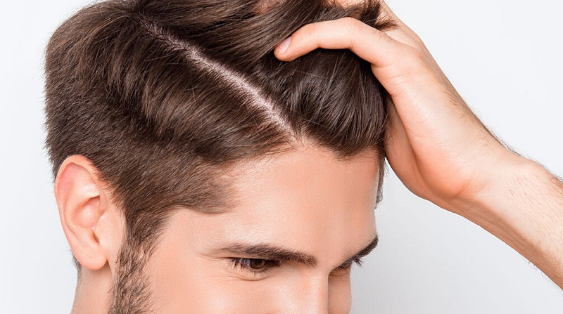 Burning Scalp Hair Loss Problems? Know the causes and treatment
